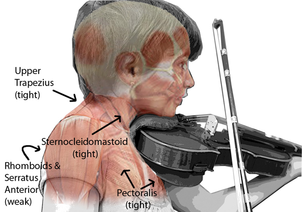 muscles affected by instrument